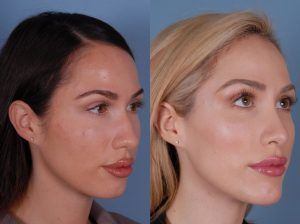 Cheek Augmentation & Implants in Islamabad , Pakistan