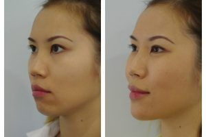 Dermal Fillers Injections Islamabad