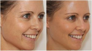 Dermal Fillers Injections Islamabad & Pakistan