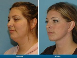 Double Chin Removal in Islamabad & Pakistan, Rawalpindi