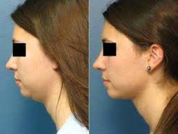 Double Chin Removal in Islamabad & Pakistan