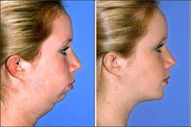 Double Chin Removal in Islamabad