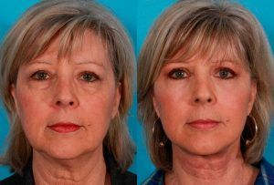 Eyelid Surgery – Blepharoplasty in Islamabad
