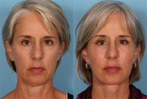 Eyelid Surgery – Blepharoplasty in Islamabad & Pakistan