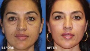 Eyelid Surgery – Blepharoplasty in Islamabad & Rawalpindi, Pakistan