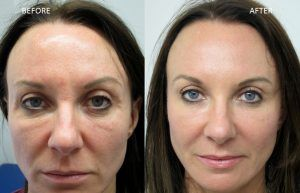 Facelift Treatment in Islamabad