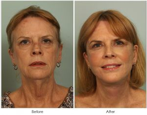 Facelift Treatment in Islamabad, Rawalpindi & Pakistan