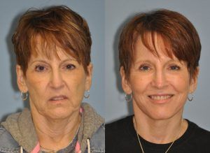 Facelift Treatment in Rawalpindi