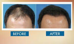 Hair Transplant Clinic in Islamabad