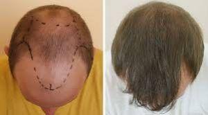 Hair Transplant Surgery in Islamabad