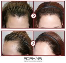 Hair Transplant in Islamabad Clinic