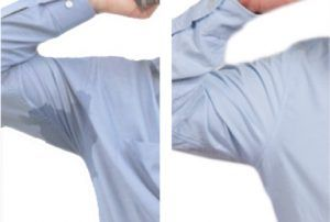 Hyperhidrosis Treatment in Islamabad
