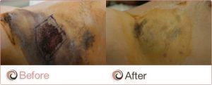 Hyperhidrosis Treatment in Islamabad & Pakistan, Rawalpindi
