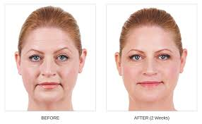 Juvederm Treatment Islamabad