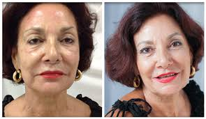 Juvederm Treatment in Islamabad & Pakistan