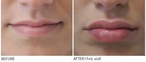 Lip Augmentation - Lip Enlargement injections & Pakistan, Rawalpindi