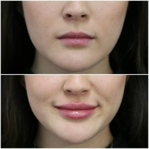 Lip Augmentation - Lip Enlargement injections in Islamabad