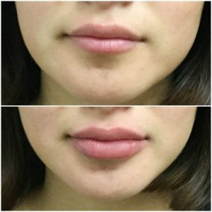 Lip Augmentation - Lip Enlargement injections in Rawalpindi