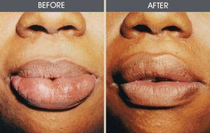 Lip Reduction in Islamabad