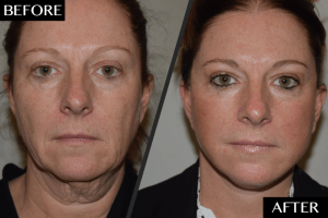 Liquid Facelift in Islamabad & Pakistan