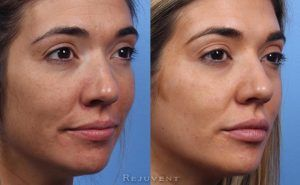 Liquid Facelift in Islamabad, Pakistan & Rawalpindi