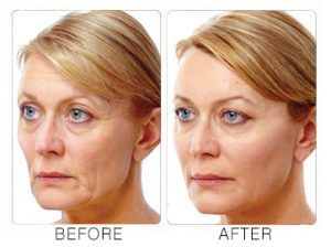 Liquid Facelift in Islamabad & Pakistan, Rawalpindi