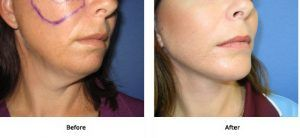Neck Lift Surgery in Islamabad & Pakistan