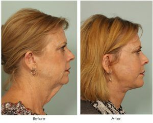 Neck Lift Surgery in Islamabad Pakistan & Rawalpindi