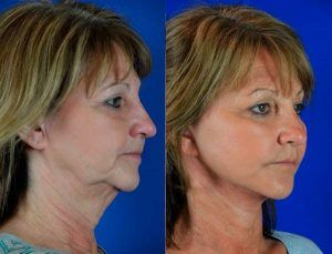 Neck Lift Surgery in Pakistan