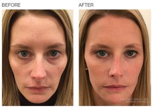 Non-Surgical Facelift in Islamabad