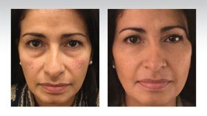 Non-Surgical Facelift in Islamabad & Pakistan