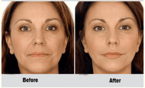 Non-Surgical Facelift in Islamabad, Rawalpindi