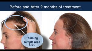 PRP Hair Loss Treatment in Islamabad & Rawalpindi.