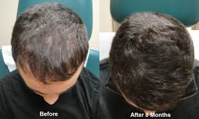 PRP Hair Loss Treatment in Islamabad & Rawalpindi