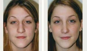 Rhinoplasty Nose Surgery in Islamabad, Pakistan