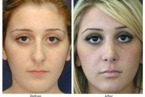 Rhinoplasty in Islamabad, Pakistan Before and After