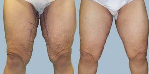 Thigh Lift in Islamabad & Rawalpindi