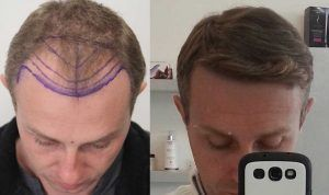 Cost of Hair Transplant in Islamabad