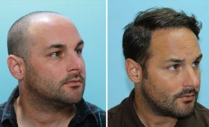 Cost of Hair Transplant in Islamabad, Lahore & pakistan