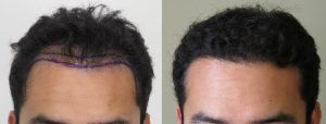 Cost of Hair Transplant in Islamabad, Rawalpindi