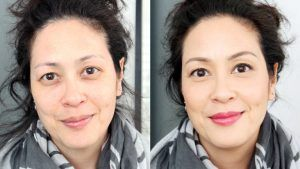 Dark circles treatment in Islamabad