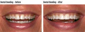 Dental Braces - Teeth Braces in Islamabad