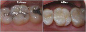 Dental Filling in Islamabad & Rawalpindi, Pakistan