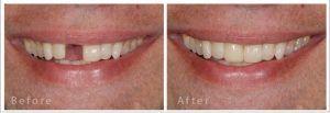 Dental Implants in Islamabad