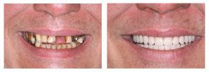 Dental Implants in Islamabad, Rawalpindi