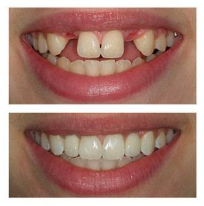 Dental Implants in Islamabad & Rawalpindi