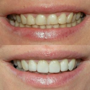 Dental Veneers in Islamabad, Rawalpindi
