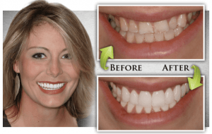 Dental Veneers in Islamabad, Rawalpindi & Lahore