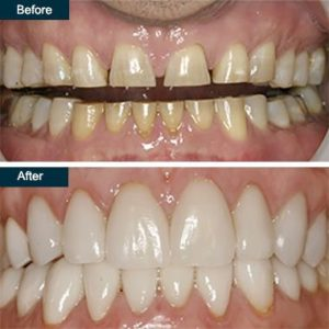 Dental Veneers in Islamabad, Rawalpindi & Lahore, pakistan
