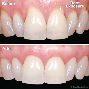 Gum Recession Treatment in Islamabad, Rawalpindi, Lahore & Pakistan